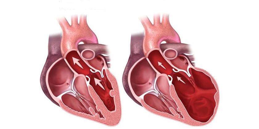 miocardiopatía hipertrófica