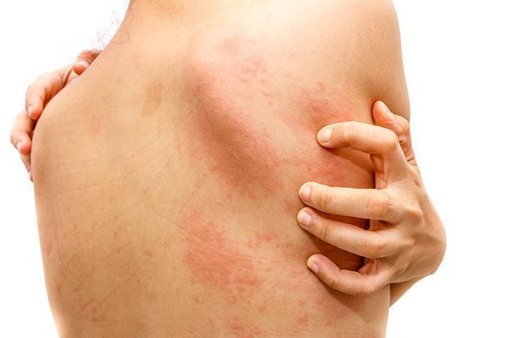 dermatitis en primavera
