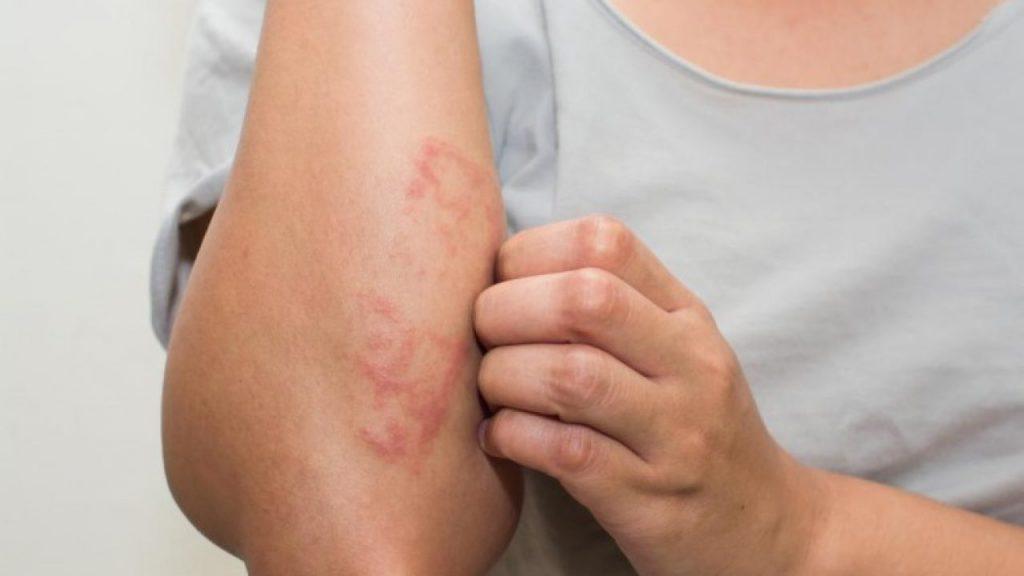 psoriasis enfermedad crónica